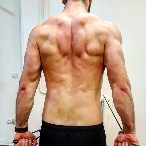 musculo trapecio