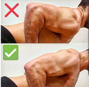 músculo trapecio superior