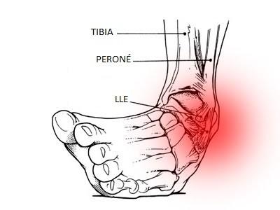 Esguince ligamento colateral del tobillo.