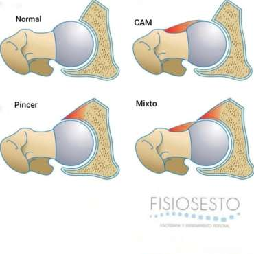 Choque femoroacetabular